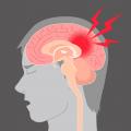 stroke dubai neurologist